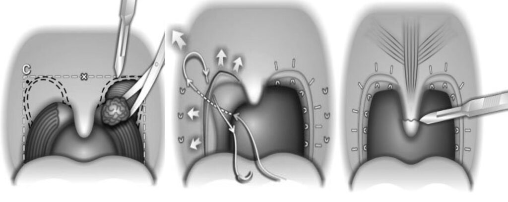 θεραπεια ροχαλητου απνοιας Relocation Pharyngoplasty