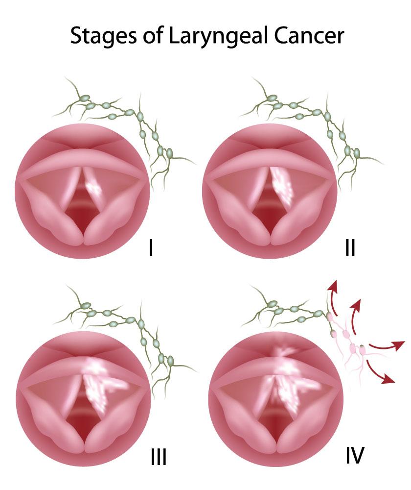 Καρκίνος του Λάρυγγα - LASER  Σταδιοποίηση Καρκίνου του Λάρυγγα Λαρυγγιτιδα πολυποδας φωνητικων χορδων Καρκίνος Λαρυγγα