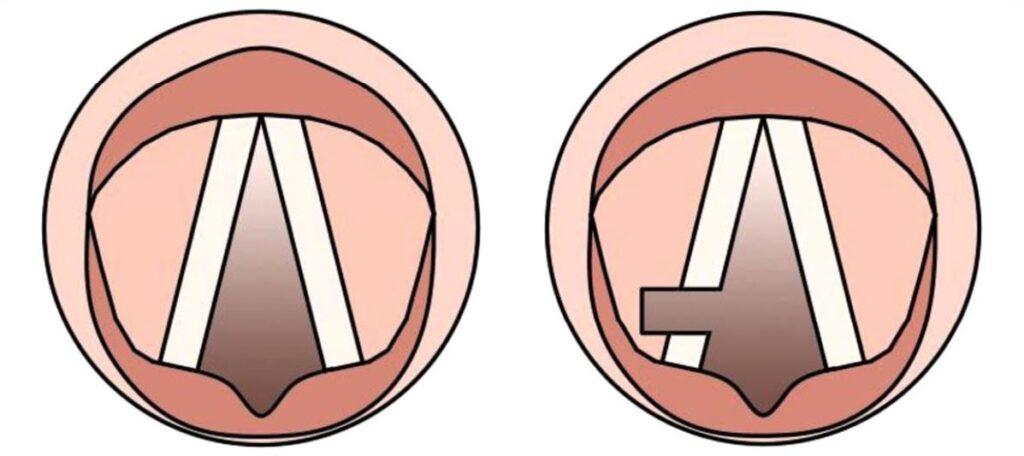 Χορδοτομή με χρήση LASER Παράλυση και των δυο Φωνητικών Χορδών